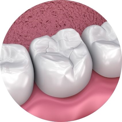 a picture of white dental fillings
