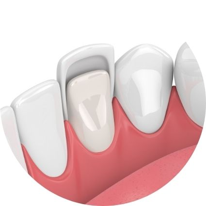 a picture of Crowns and Veneers