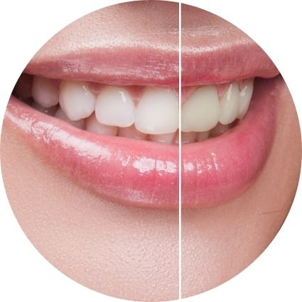 a picture of teeth whitening