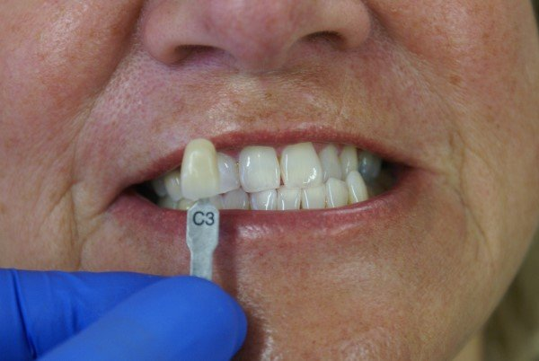 Case 1 - Teeth whitening - after