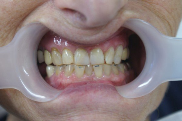 cosmetic composite resin restorations after