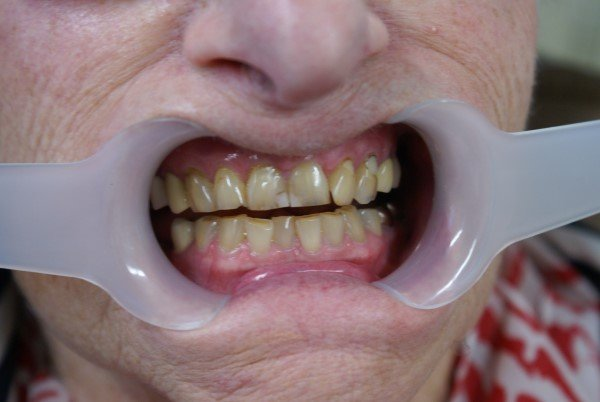 cosmetic composite resin restorations before